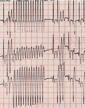 Troubles du rythme cardiaque sur l'électrocardiogramme chien